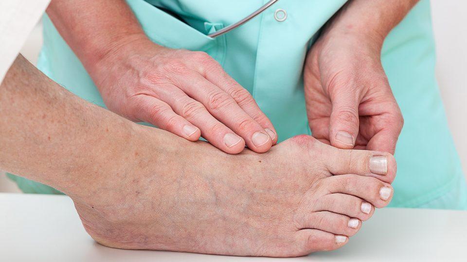 Estudio demuestra éxito en tratamiento para ulceras diabéticas en los pies