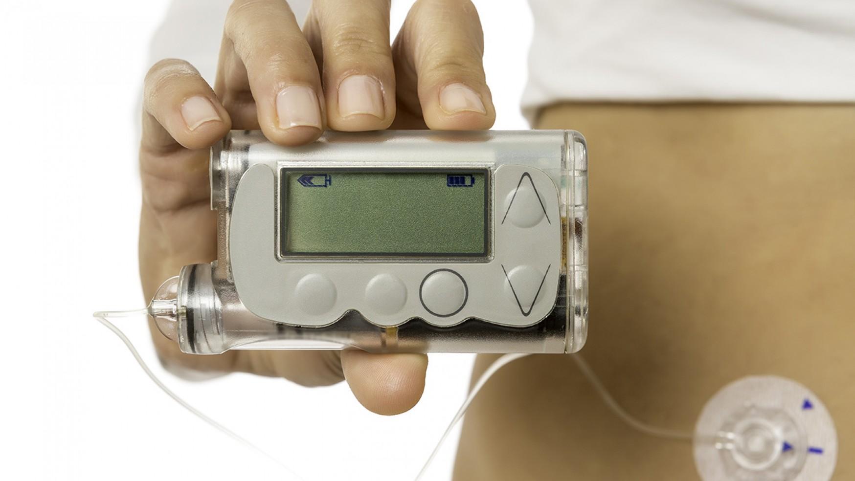 ¿Qué son las Bombas de Insulina?